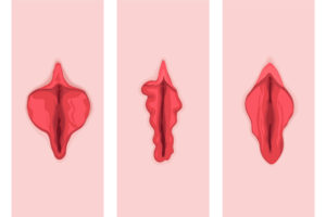 Piccole-labbra-ipertrofiche