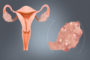 Polycystic Ovaries