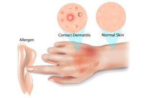 prurito-vulvare-dermatite-da-contatto